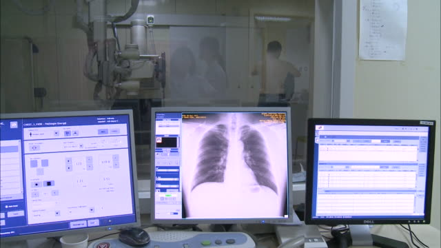May 2 2010 HA Three computer screens in a row on a table displaying medical information and an xray as a patient gets dressed in a changing room...