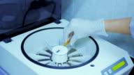 Medical microcentrifuge for matt group bloods in blood bank