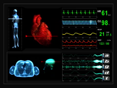 Scanner medico Monitor