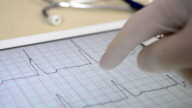Medicine. A heart test ecg on a digital tablet screen