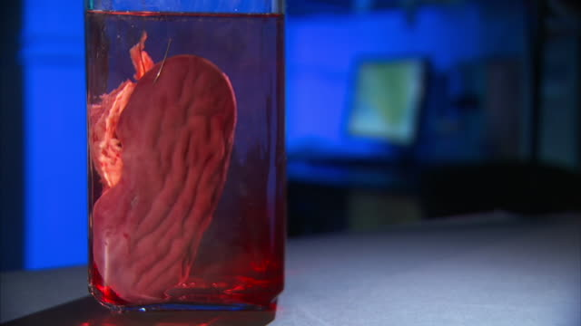 Medium Close Up_static - A glass jar holds a human organ suspended in liquid.