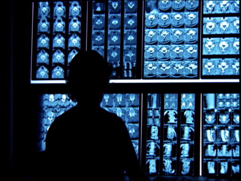 Medium shot doctor looking at scrolling screens of medical x rays