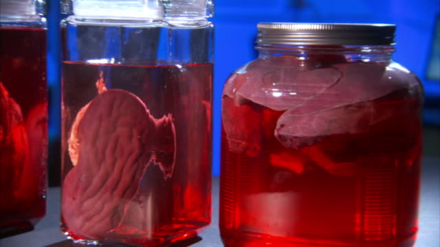 Medium_pan-left zoom-out - Glass jars hold human organs suspended in liquid.