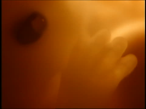 Microscopic extreme close up - head + hand of human embryo at 4 weeks