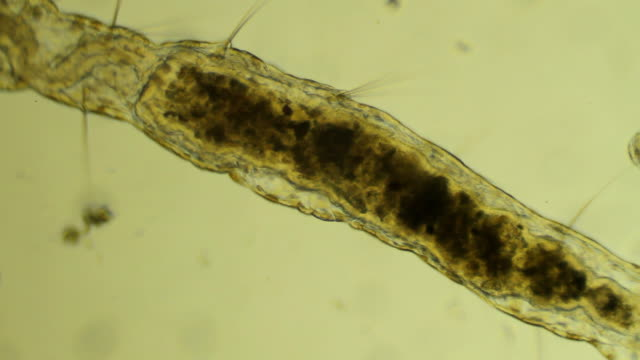 Microscopic worm Aelosomna crawls