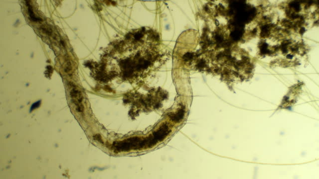 Microscopic worm Aelosomna eats mud