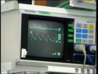 Monitor of life support machine CMS Air pump working CS Tubes