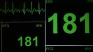 ECG Monitor