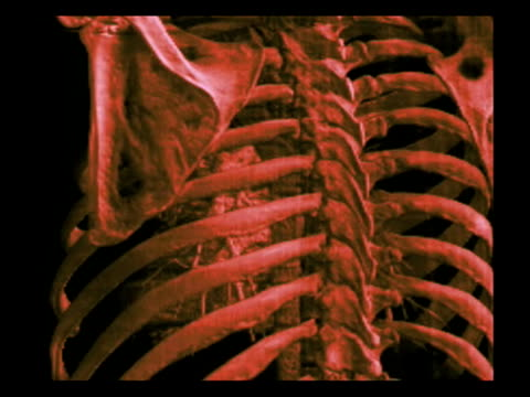Multiple computed tomography (CT) scans of a chest cavity, showing the ribs and the heart..