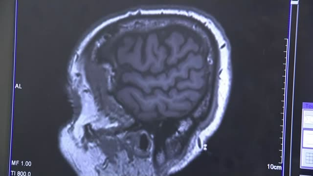 New drug could slow the progression of Alzheimer's disease 2052015 / T20051528 Close shot of brain scam image shown on computer screen