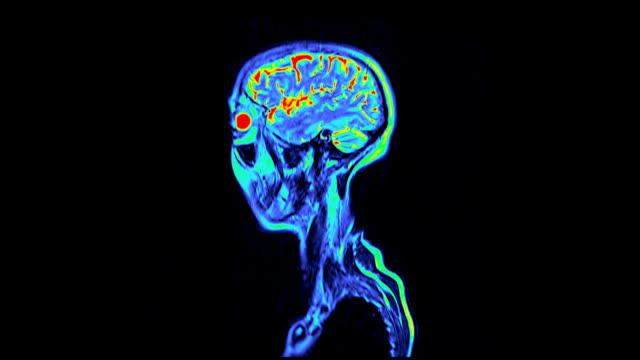 'Normal MRI brain scan, sagittal view'