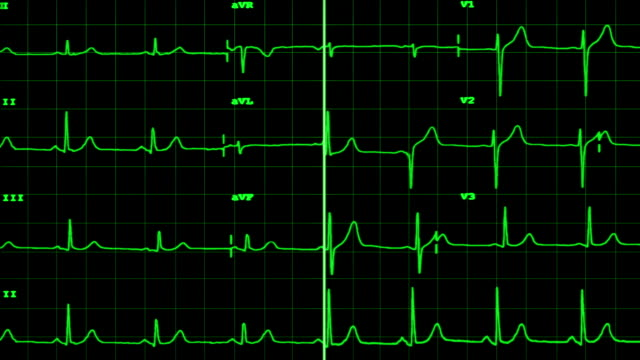 ECG of a stopping heart with sound