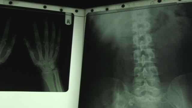 Pan across a set of human X-rays.