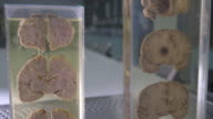 Pan up cross sections of human brains in a laboratory.