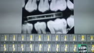 Panoramic X-ray of teeth on the monitor