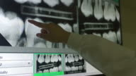 Panoramic X-ray of teeth on the monitor with dentist hand