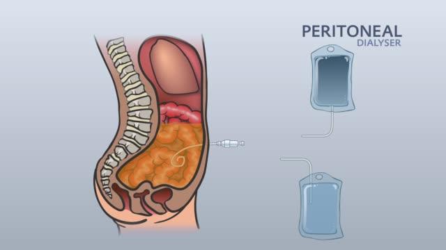 Peritoneal Dialyse 05