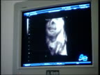SUE ENGLAND London INT Pregnant woman lying down as watches 4D computer ultrasound pictures with husband Osgar Kemal and exclaims 'it smiled' SOT CS...