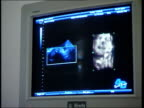 London Pregnant woman having scan CSs Screen showing ultrasound pictures of baby in womb moving CF = D0514874 or D0514872 001448 TO