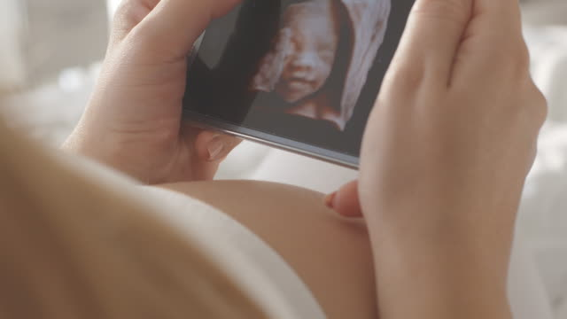 Pregnant woman watching ultrasound image on smart phone