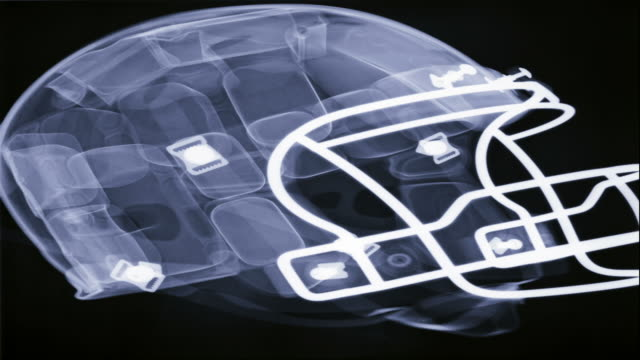 Radiographic video of an American football helmet
