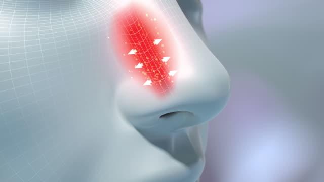 HD: Rhinitis medical animation