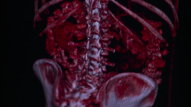CU Rotating 3D CAT scan of human intestines on computer monitor / Burlington, Vermont, USA
