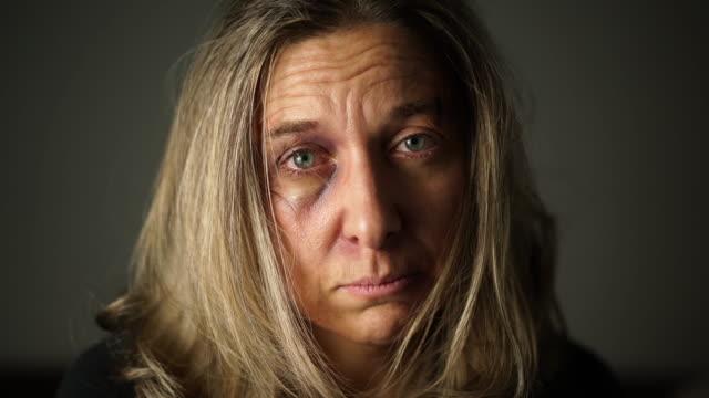 sad face of beaten woman
