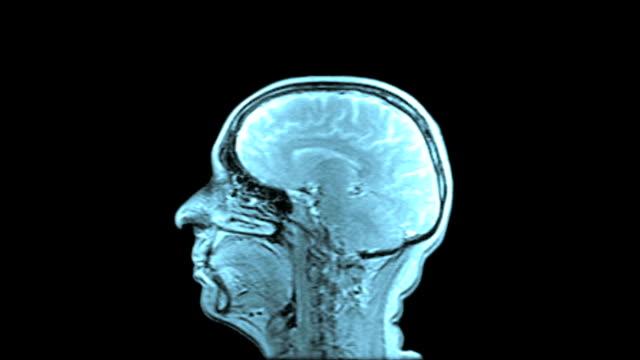 MRI Scan Of Human Brain (Blue Toned)
