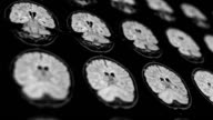 MRI scan result