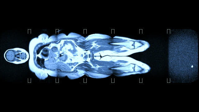 MRI scans of an obese woman