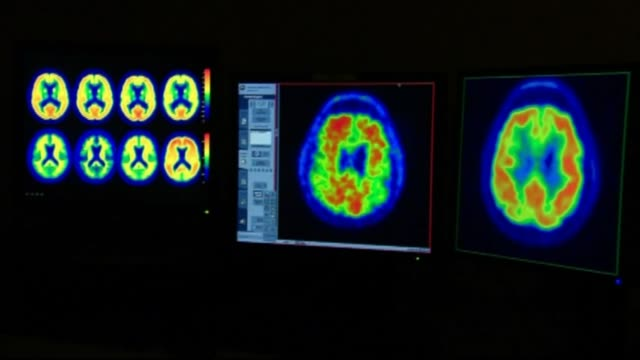 Scans of Brain with Alzheimer's Disease on December 30 2014 in New York New York