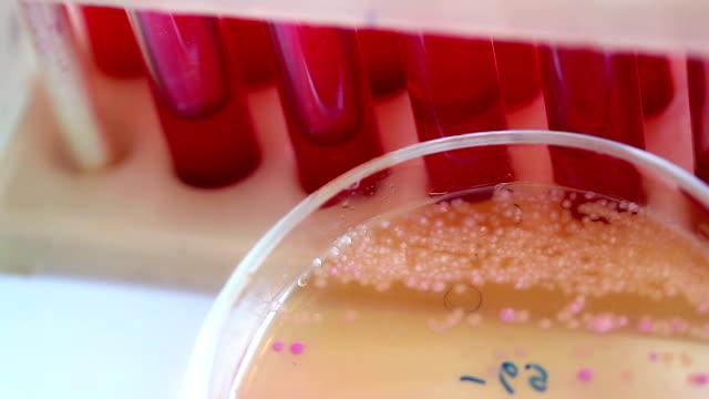 Scientific laboratory. Colonies of bacteria in petri dishes