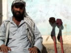 September 15 2005 MS TD Portrait of man who lost leg in mine field / Afghanistan / AUDIO