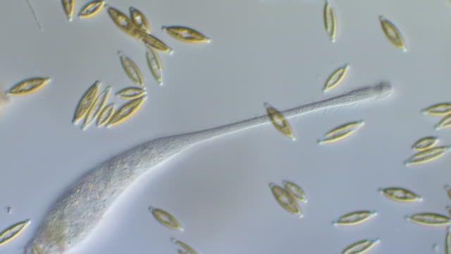 ECU TS Shot of Lacrymaria olor ( O.F.Muller 1786) is Ciliate protozoan found in freshwater ponds also predator and has been observed to feed on other protozoans / Newcastle Emlyn, Ceredigion, United Kingdom