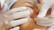 skin face  treatment