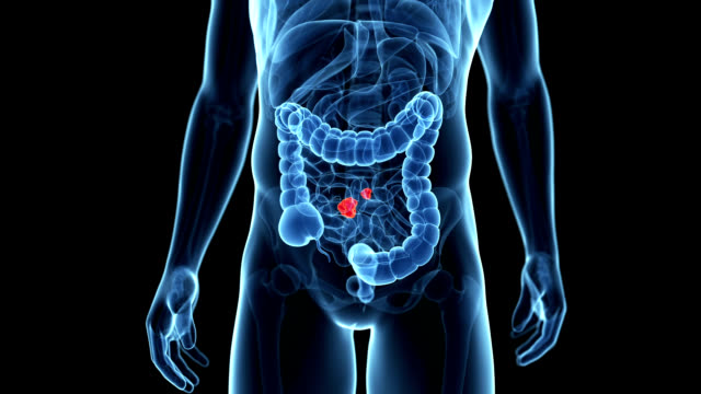 Small intestinal cancer
