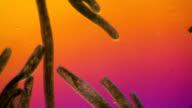 Spirostomum swimming in pond water