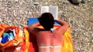 HD: Sonnenbrand Frau