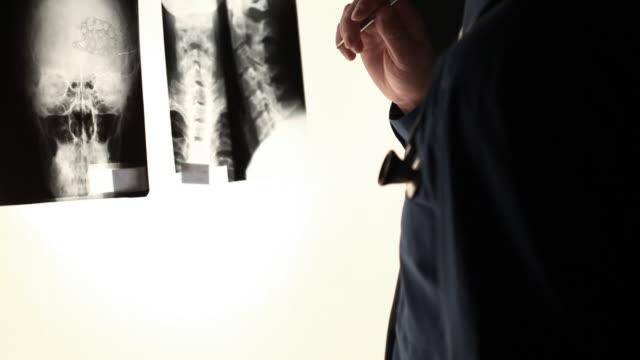 Surgeon Analyzing X-ray
