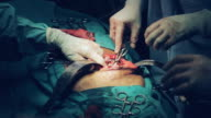Surgeons doing open renal pelvis operation