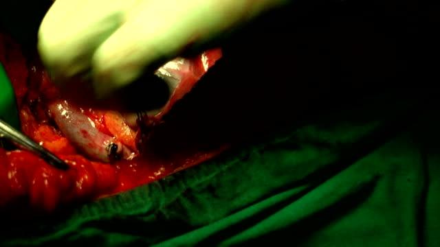Operazione di intervento