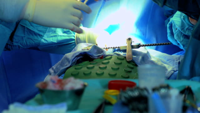 Surgical team operating a patient