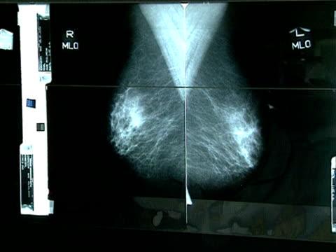Technician puts xrays showing mamograms onto a lightbox UK 2000