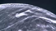 KDAF 3D technology gained FDA approval for imaging of dense breast tissue to look for cancer on September 05 2012 in Plano Texas