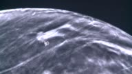 3D technology gained FDA approval for imaging of dense breast tissue to look for cancer on September 05 2012 in Plano Texas