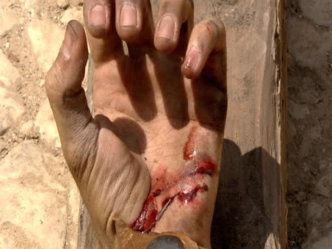The hand of Jesus clenches during His crucifixion.