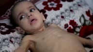 the United Nations Children's Fund and UN World Food Programme release a press statement about latest humanitarian crisis in Sanaa Yemen on April 25...