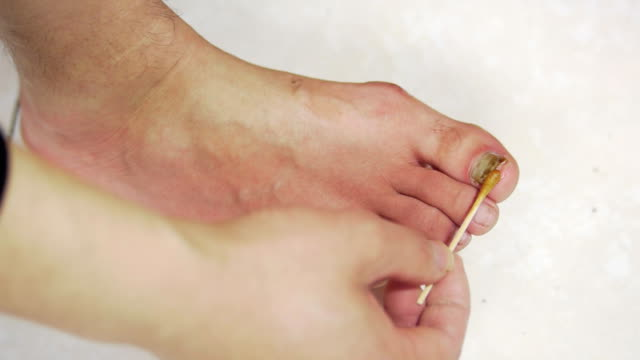 Treatment ringworm of the nails