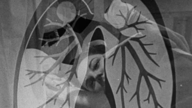 1943 MONTAGE Tuberculin patient being prepared for pneumothorax procedure by medical team, and an animated depiction of the operation to collapse the diseased lung / United Kingdom